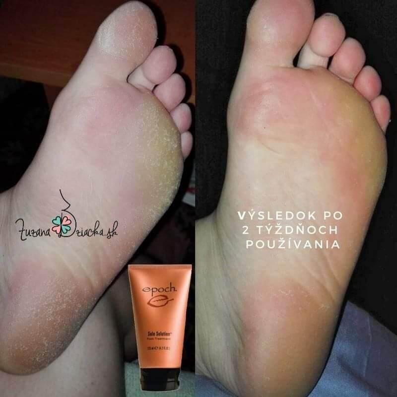 Epoch Sole Solution krém na popraskané päty prsty a chodidlá suché ruky lakte kolená